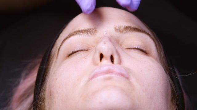 Non Surgical Nose Augmentation Training