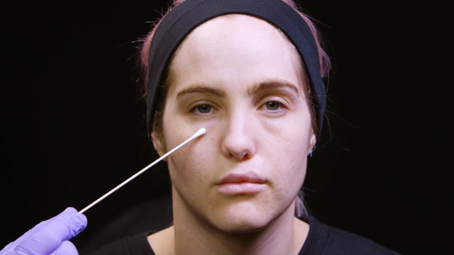How To Treat Infraorbital Hollowing