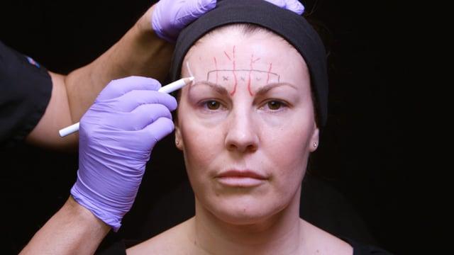 How To Treat Forehead Convexity