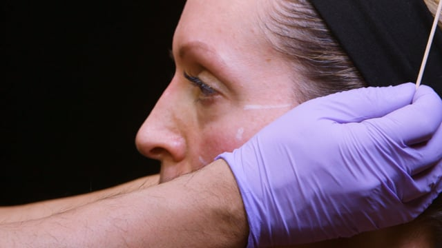 How To Perform Full Face Dermal Fillers