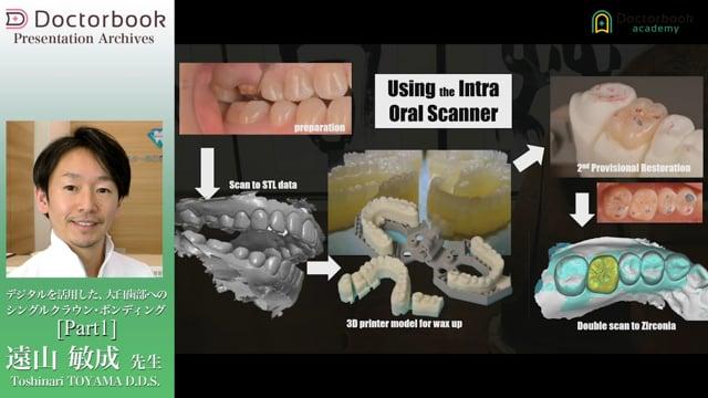 デジタルを活用した、大臼歯へのシングルクラウン・ボンディング