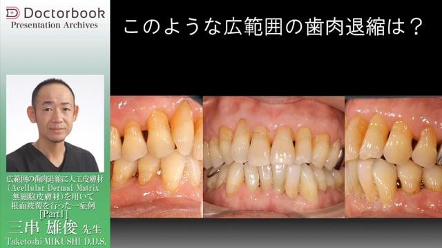 広範囲の歯肉退縮に人工皮膚材無細胞皮膚材を用いて根面被覆を行った一症例