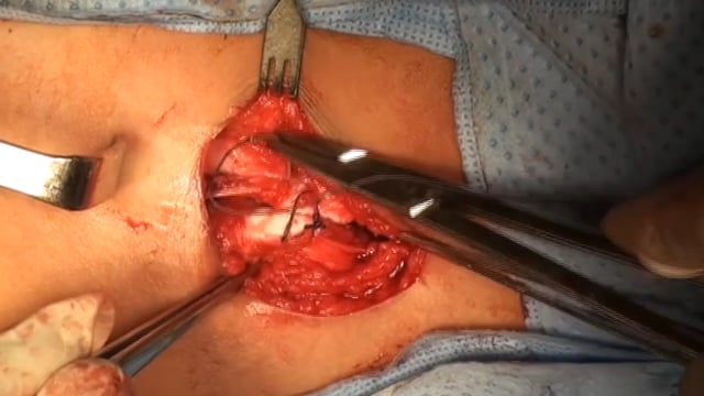 Iliac Open Reduction and Osteotomy