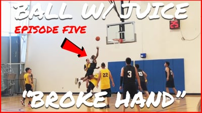 This Is How I Broke My Hand...