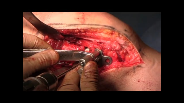 Distal Femoral Osteotomy, Varus Malalignment and Osteochondral Allograft for Cartilage Injury