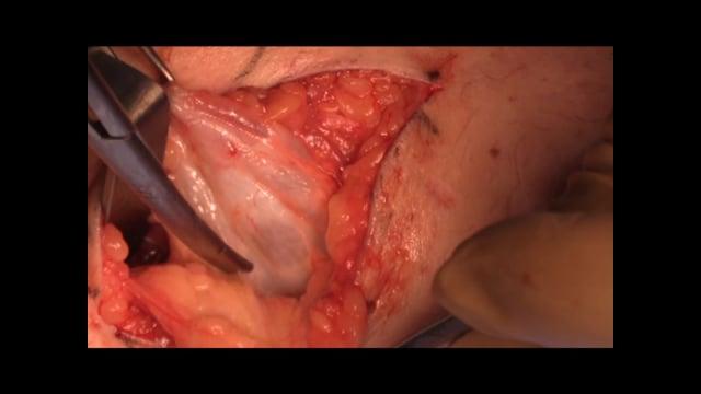 Popliteal Cyst Excision