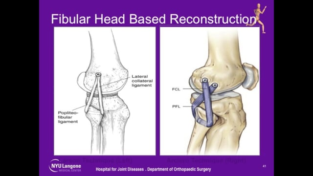 Surgical Management of Posterolateral Corner Injuries