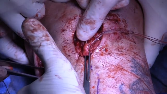 Distal Medial Collateral Ligament and Distal Patellar Tendon Repair