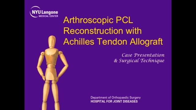 Arthroscopic PCL Reconstruction with Achilles Tendon Allograft