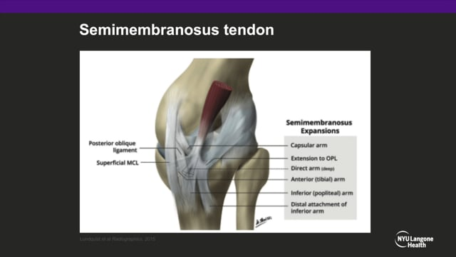 Demystifying the Posteromedial Corner of the Knee