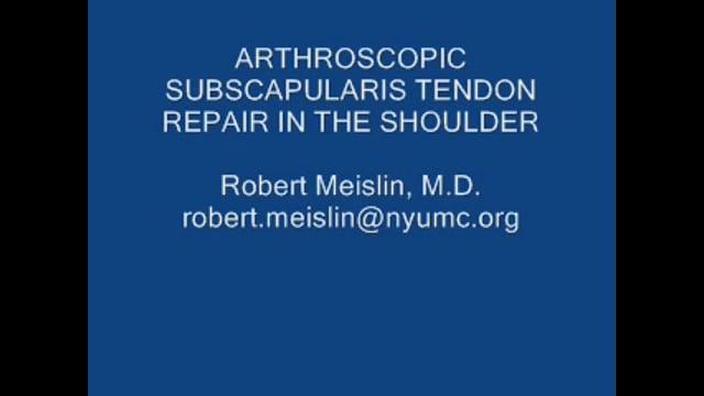 Arthroscopic Subscapularis Tendon Repair in the Shoulder