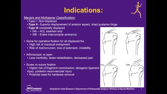 Tibial Spine Avulsion Fracture