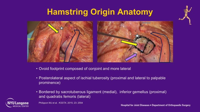Proximal Hamstring Tendon Repair: Case Presentation & Surgical Technique