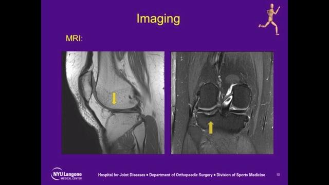 Basic Uses of Hyaluronic Acid in Early Knee Arthritis