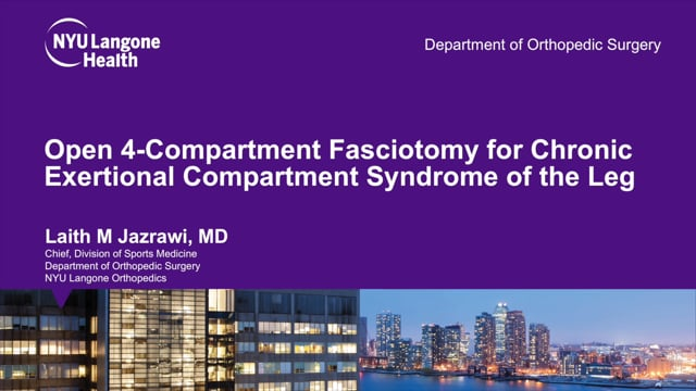 Open 4-Compartment Fasciotomy for Chronic Exertional Compartment Syndrome of the Leg