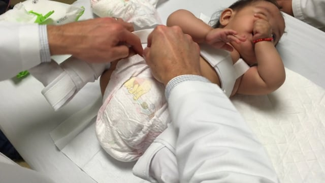 Changing a Diaper on a Child with a Pavlik Harness