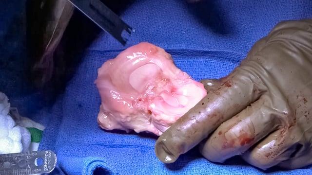 Lateral Hemi-Tibial Plateau Allograft Transplantation and Distal Femoral Varus Osteotomy