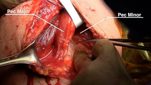Open Rotator Cuff Repair and Pectoralis Major Tendon Transfer for Subscapularis Insufficiency