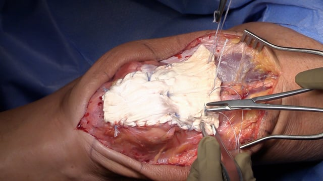 Quadriceps Tendon V-Y Plasty Reconstruction with Achilles Augmentation for Failed Quadriceps Tendon Repair