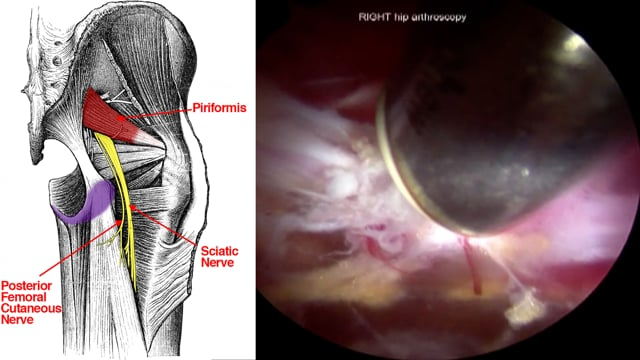 Endoscopic Sciatic Nerve Decompression for Deep Gluteal Syndrome: Prone and Supine Approaches
