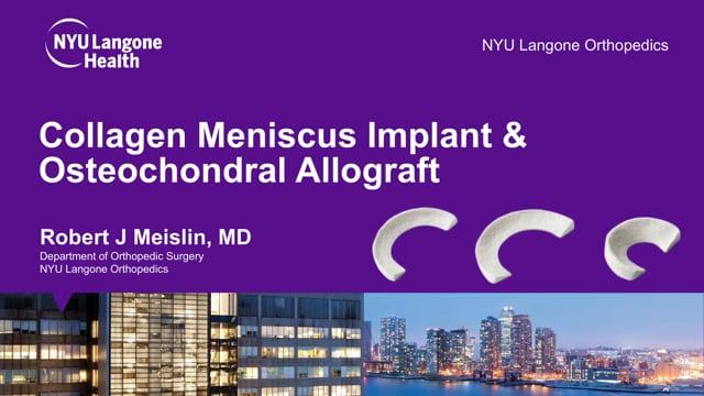 Resorbable Collagen-based Meniscus Implant & Osteochondral Allograft