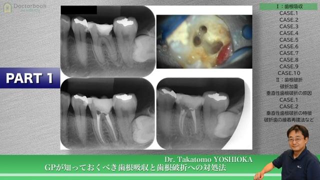 GPが知っておくべき歯根吸収と歯根破折への対処法