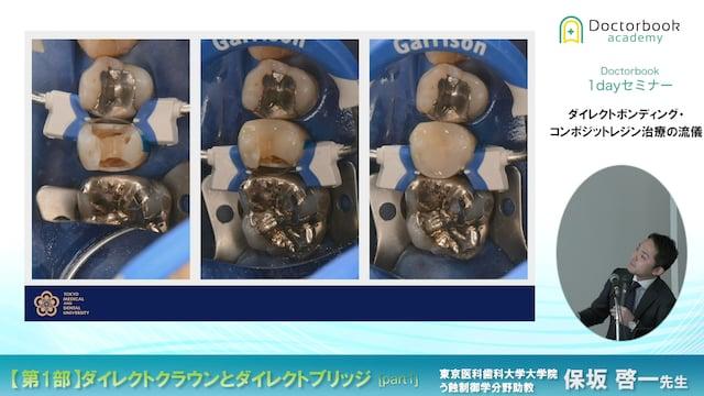 ダイレクトクラウンとダイレクトブリッジ 〜The power of Direct Composite Restoration〜