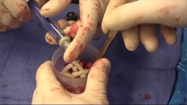 Posterolateral Bone Grafting for Distal Tibia Nonunion