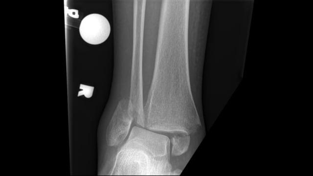 Repair of Bimalleolar Ankle Fracture