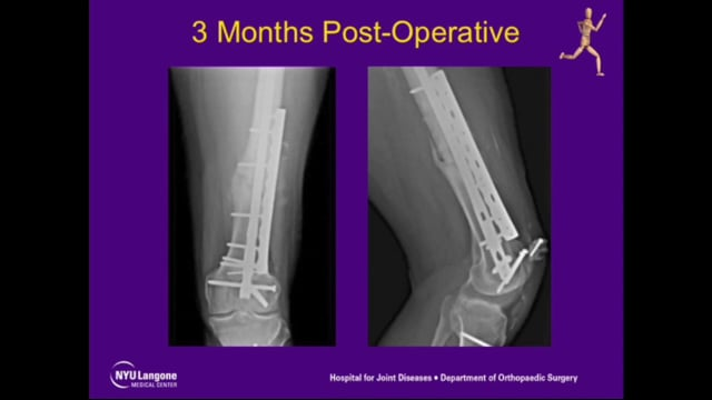 Repair of Femoral Nonunion with Plate Compression and Autogenous Iliac Graft
