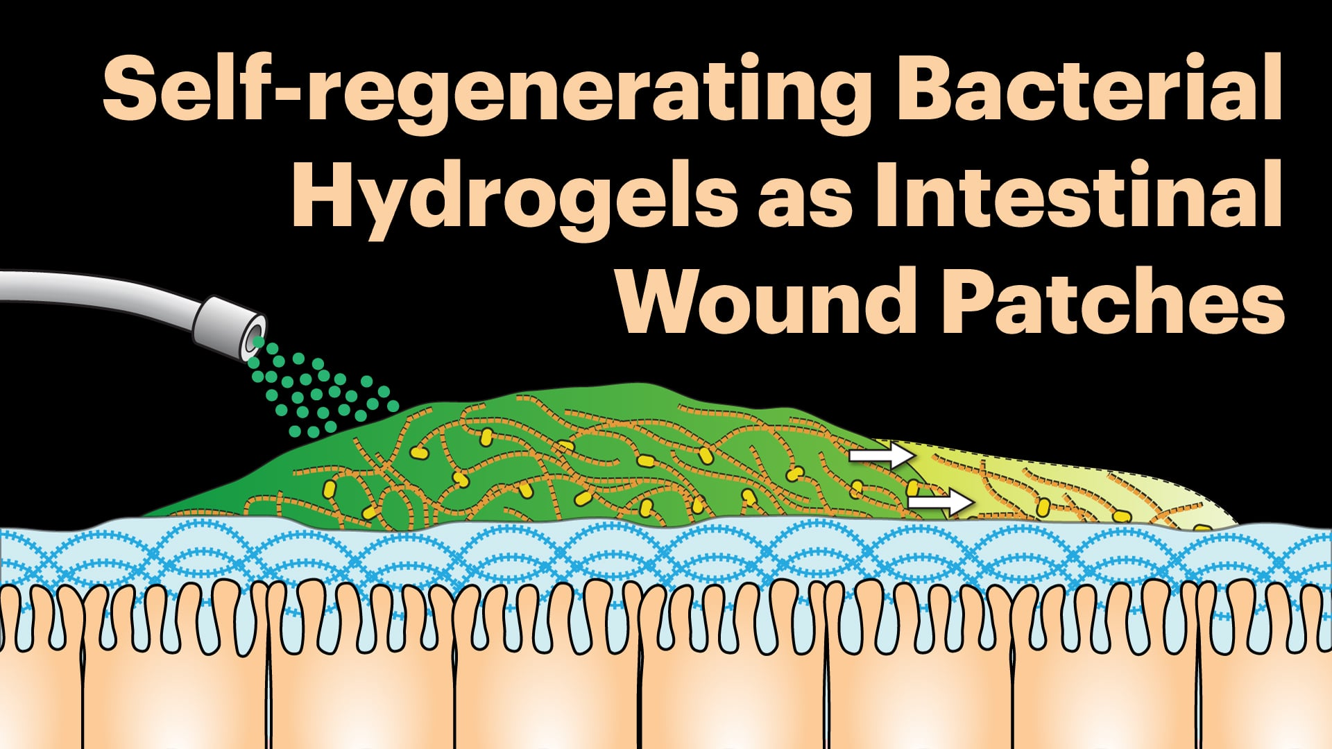 Self-regenerating bacterial hydrogels as intestinal wound patches