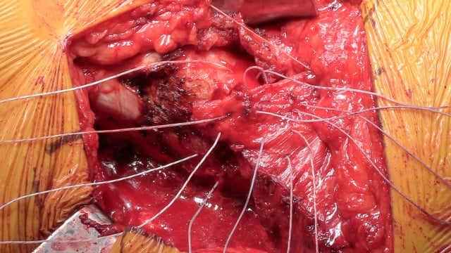 Gluteus Maximus Tendon Transfer for Primary Abductor Insufficiency