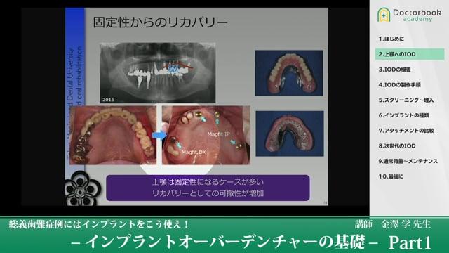 総義歯難症例にはインプラントをこう使え!‐インプラントオーバーデンチャーの基礎‐