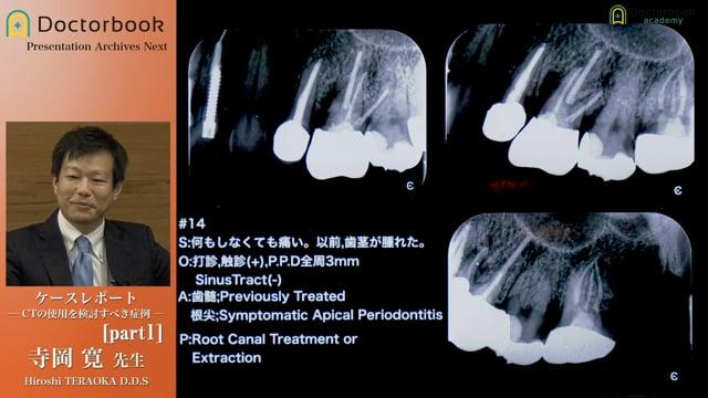 ケースレポート 〜CTの使用を検討すべき症例〜