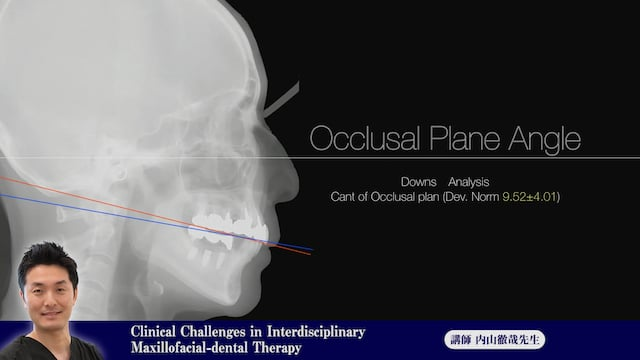 ⑬Clinical Challenges in Interdisciplinary Maxillofacial-dental Therapy