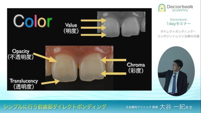 シンプルに行う前歯部ダイレクトボンディング