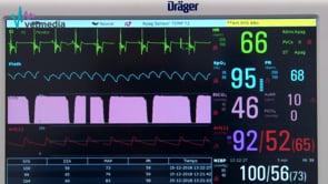 Monitorización del animal y explicación del monitor multiparamétrico