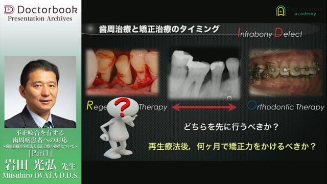 不正咬合を有する歯周病患者への対応 〜歯周組織再生療法と矯正治療の連携について〜