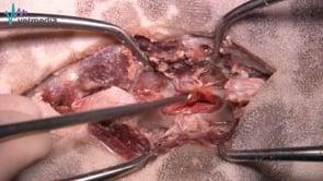 Laminectomía dorsal
