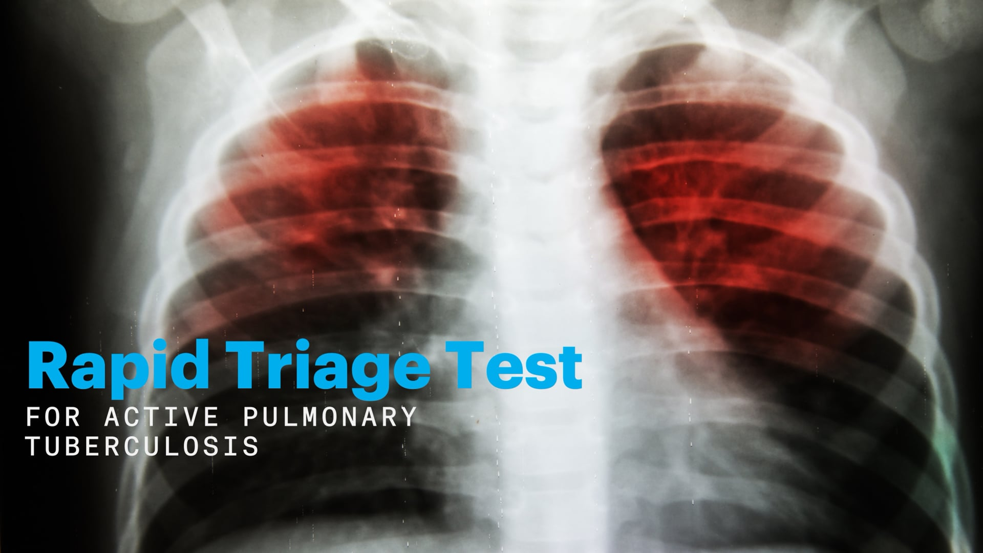 Rapid Triage Test for Active Pulmonary Tuberculosis