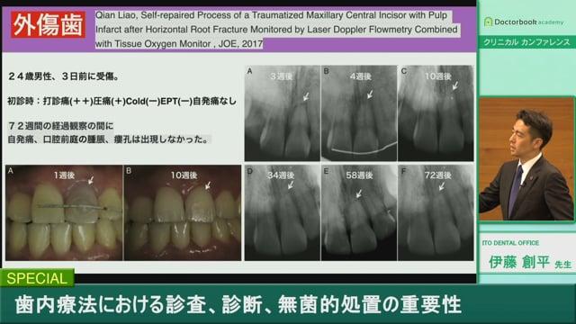 #2 歯髄の診査診断