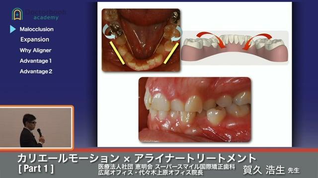 矯正歯科のトレンド ~カリエールモーション×アライナートリートメント~