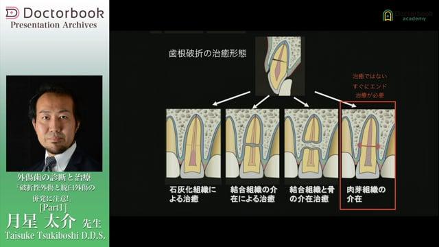 【オススメ動画 Pick UP】外傷歯の診断と治療「破折性外傷と脱臼外傷の併発に注意!」