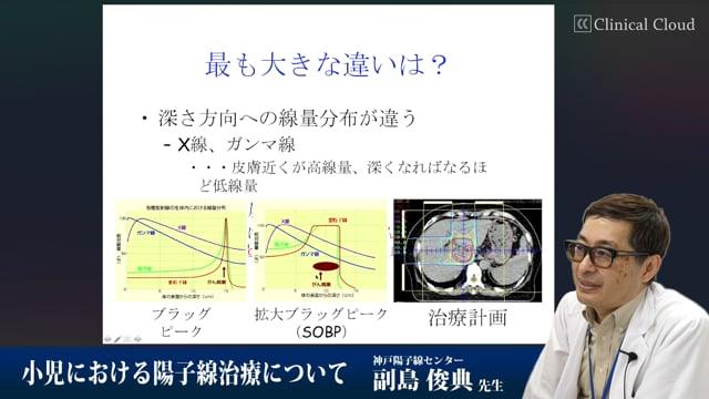 副島 俊典先生:小児における陽子線治療について