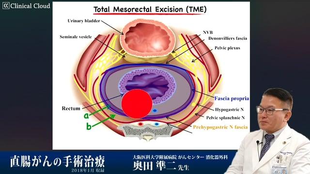 奥田 準二先生:直腸がんの手術治療