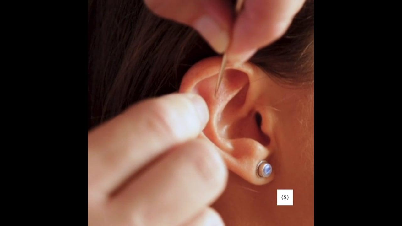 acupuntura (Vertical version)