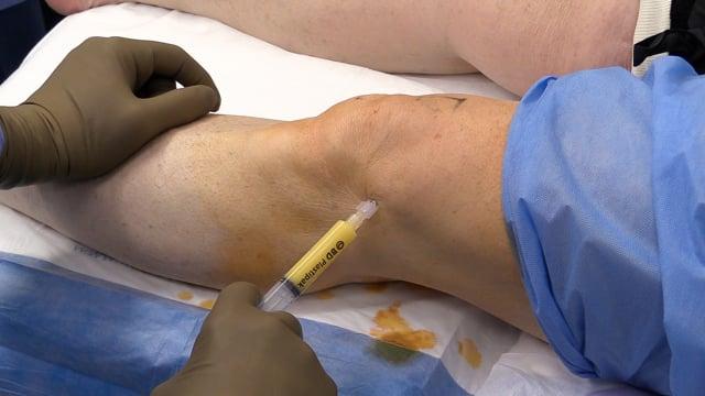 Adipose-derived Stem Cell Transplantation for Osteoarthritis