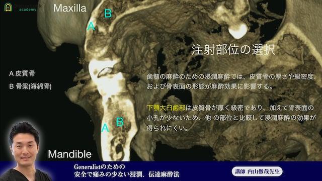 ④Generalistのための安全で痛みの少ない浸潤、伝達麻酔法