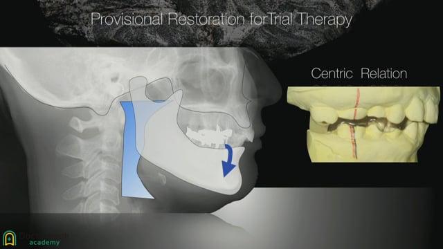 #4 臼歯の咬合崩壊症例