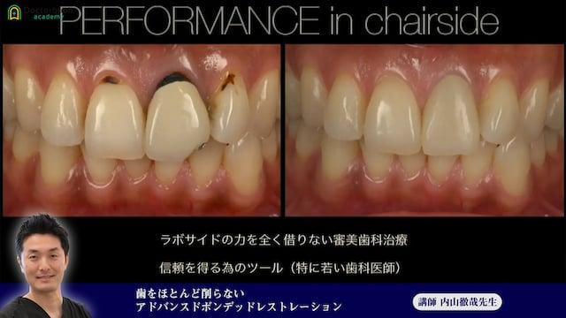 ⑦歯をほとんど削らないアドバンスドボンデッドレストレーション
